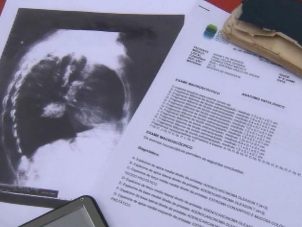 Documentos falsos foram apresentados no INSS (Foto: Reprodução / TV TEM)