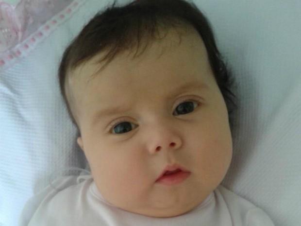 Sofia, de três meses, sofre da síndrome de Berdon (Foto: Divulgação / Campanha 'Ajude a Sofia')
