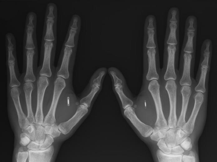 Homem implanta chips NFC nas mãos para guardar chave bitcoin e destravar portas (Foto: Reprodução/Ars Technica)