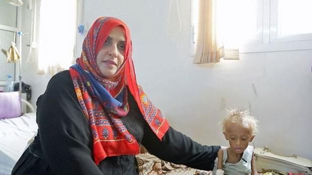 Ashwaq Muharram chora de tristeza com a situação das crianças no Iêmen. (Foto: BBC)