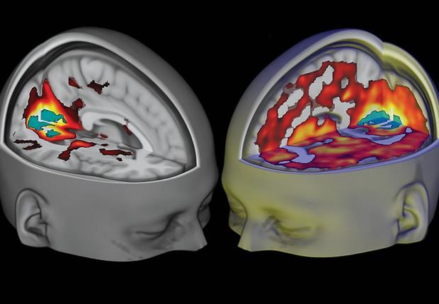 Modelos de atividade cerebral após ingestão de substâncias psicodélicas (Foto: Reprodução/YouTube)