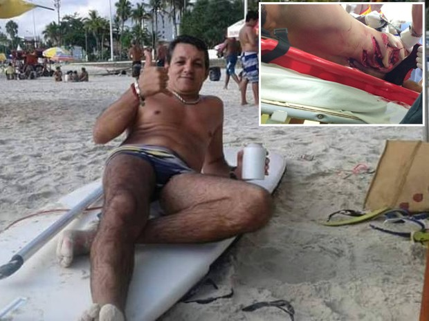Renato foi atingido por uma embarcação  (Foto: Arquivo Pessoal)