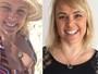 Ana Paula Pituxita faz bichectomia e mostra antes e depois