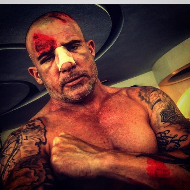 Dominic Purcell sobre acidente durante gravação (Foto: Reprodução / Instagram)