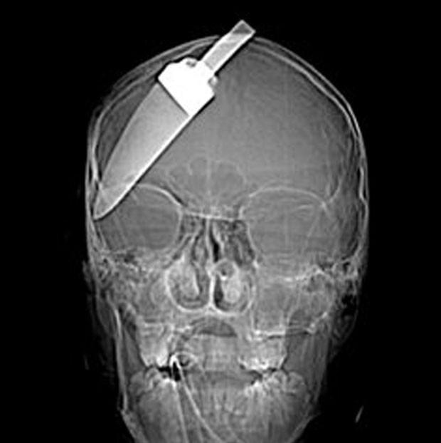 Em 2007, Um jovem de 16 anos ficou ferido ao tentar salvar um amigo que estava sendo assaltado em um ponto de ônibus em Londres, na Inglaterra. Ele teve uma faca cravada na cabeça e foi levado ao hospital em Walworth, no sul de Londres. Apesar da imagem f (Foto: AP)