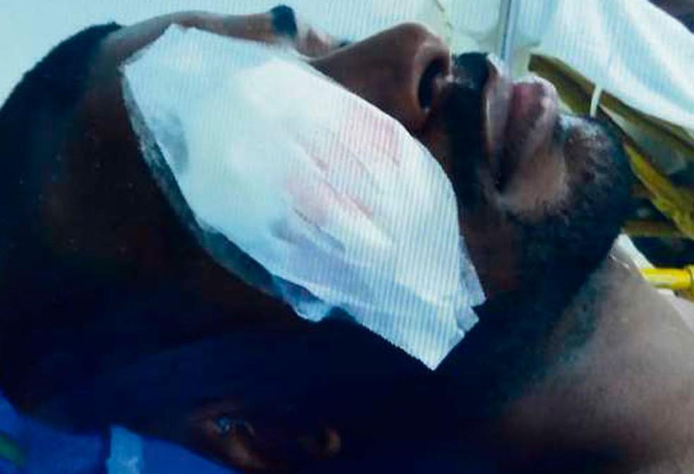 Edson José Domingos Neto perdeu a visão de um olho (Foto: Reprodução)