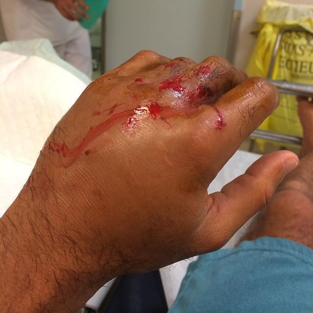 Michel Bourez fica a mão inchada após fraturar dedos e vértebras surfando em Teahupoo, no Taiti (Foto: Reprodução/Instagram)