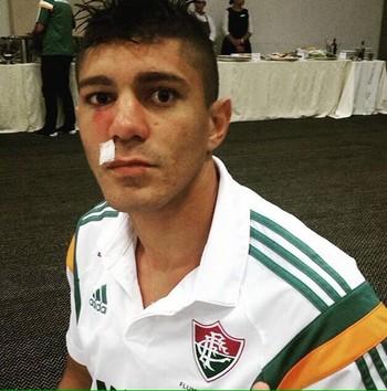 Edson machucado Fluminense (Foto: Reprodução / Instagram)