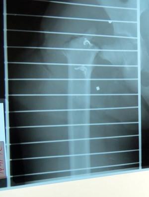 raio-x quadril eu atleta (Foto: Getty Images)
