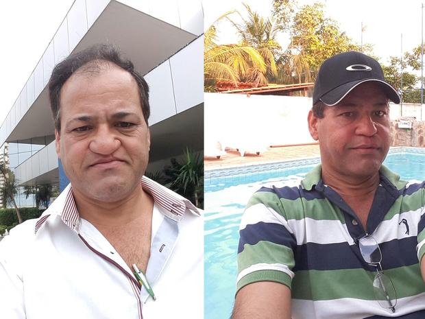 Pedro Benedito Filho antes e depois de cirurgia de reconstrução facil (Foto: Pedro Benedito Filho/ Arquivo pessoal)