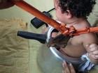 Bebê de um ano fica entalada em panela de pressão no interior do AC