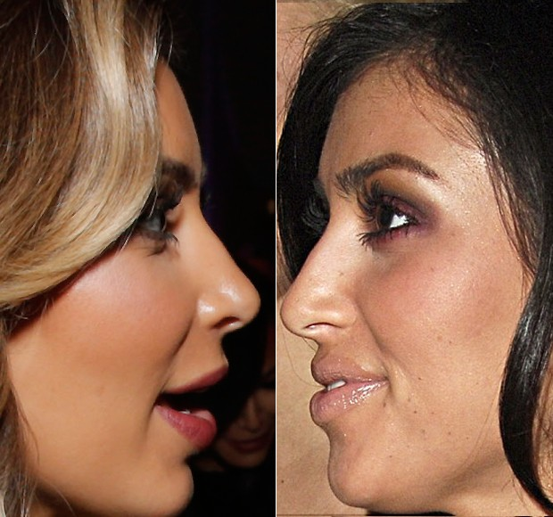 Imprensa volta a questionar plásticas de Kim Kardashian - Quem | QUEM ...