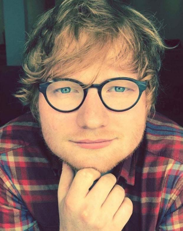 Ed Sheeran mostra braço machucado e explica: