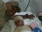 Criança perde 5 dedos após incêndio em casa (Marcos Vinícius/Arquivo Pessoal )