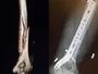 Campeã olímpica, Lindsey Vonn fratura o braço em acidente nos EUA