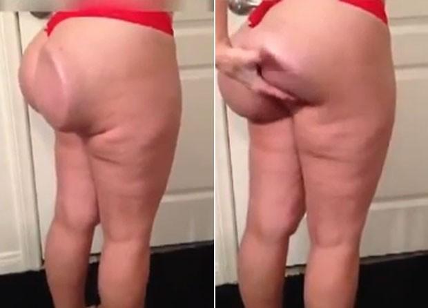 Mulher ficou com bumbum 'deformado' após silicone sair do lugar (Foto: Reprodução/YouTube/)