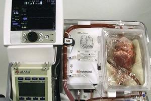 Máquina onde coração que deixou de bater é reanimado  (Foto: Divulgação)