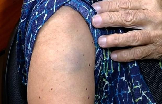 Idosa fica com hematomas após ser agredida durante assalto a ônibus na BR-452, em Bom Jesus de Goiás (Foto: Reprodução/TV Anhanguera)