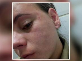 Edvânia Nayara Ferreira Rezende em foto tirada logo após ser agredida no clube onde trabalhava neste sábado (17) em Três Corações, MG: Quero justiça (Foto: Arquivo pessoal/Edvânia Nayara)