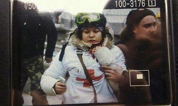 Olesya Zhukovskaya aparece em foto que teria sido tirada logo após a jovem ser baleada no pescoço (Foto: Reprodução/Facebook/Euromaidan)