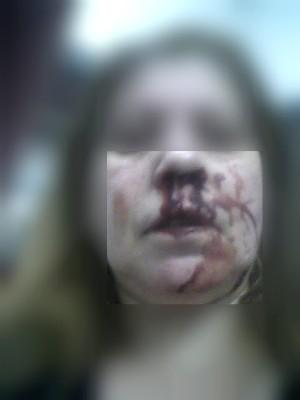 Funcionária pública registrou lesões da agressão (Foto: Arquivo pessoal)