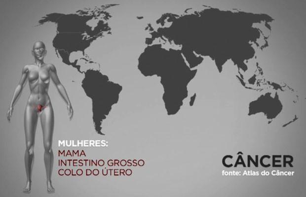 Atlas do Câncer mostra que câncer de mama é um dos que mais acomete mulheres no mundo todo (Foto: Arte/EPTV)