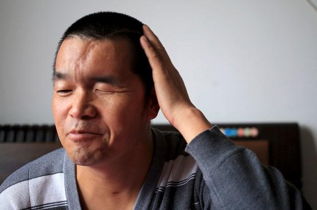 Cirurgia reconstruiu crânio de paciente (Foto: China Daily/Reuters)
