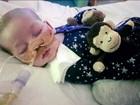 Justiça manda desligar os aparelhos que mantêm vivo o bebê Charlie Gard