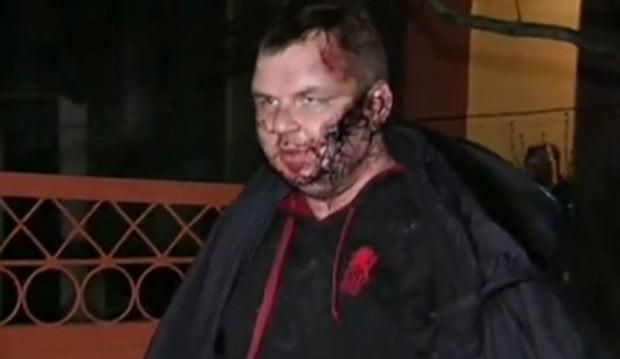Dmytro Bulatov mostra suas feridas (Foto: BBC)
