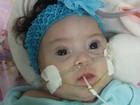 Mesmo com decisão judicial, bebê espera cirurgia cardíaca há 3 meses