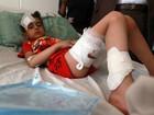 Ao menos 62 crianças morreram em combates no Iêmen, diz Unicef