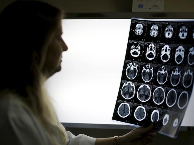 Neuropediatra Vanessa Van Der Linden observa exame de imagem de um bebê com microcefalia no Hospital Barão de Lucena, no Refife, Brasil, em foto de 26 de janeiro (Foto: Reuters/Ueslei Marcelino)