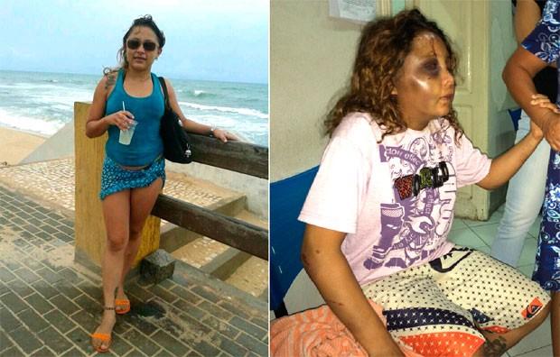 Fotos mostram Fabiane antes e depois de sofrer as agressões (Foto: Arquivo da família e Matheus Magalhães/G1)