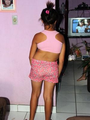 Jovem sofre de escoliose e precisa de cirurgia (Foto: Raimundo Mascarenhas / Site Calila Noticias)