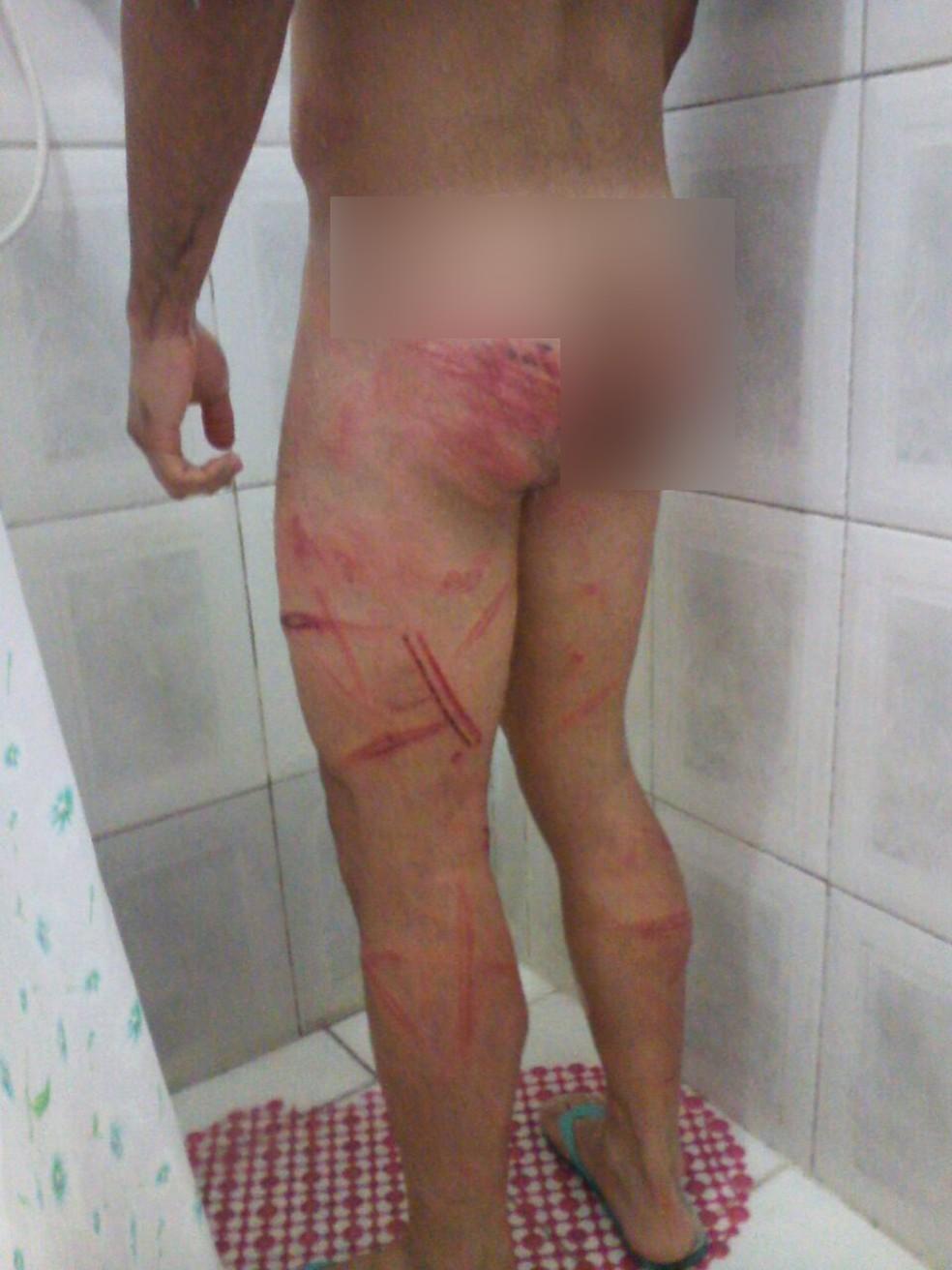 Soldado ficou com marcas no corpo após agressões (Foto: Arquivo Pessoal)