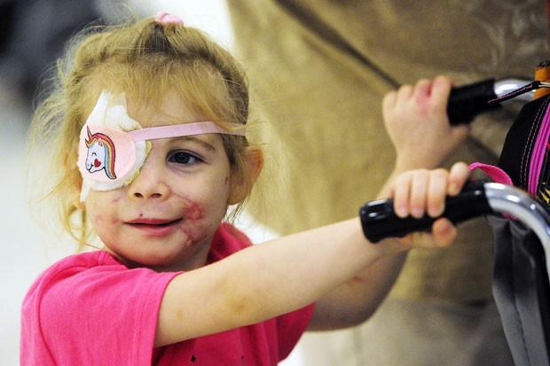 Victoria Wilcher, de 3 anos, ficou conhecida no país depois que, supostamente, foi convidada a se retirar de um restaurante da rede KFC porque estaria incomodando os clientes. Ela possui cicatrizes no rosto, provenientes de um ataque de cães da raça pit-bull (Foto: Naples Daily News, Corey Perrine/AP)