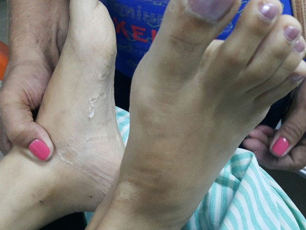 Boca, mãos e pés da vítima foram colados com cola instantânea em Sumé, na Paraíba (Foto: Jacqueline Oliveira/Arquivo Pessoal)