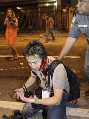 Fotógrafo de agência francesa ficou ferido (Foto: Uanderson Fernandes / Agência O Dia / Estadão Conteúdo)