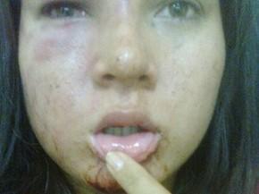 Jovem postou fotos dos hematomas nas rede sociais (Foto: Arquivo pessoal/)