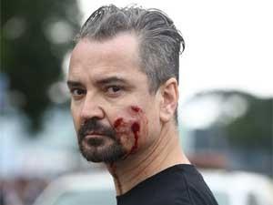 Manifestante ferido em confronto entre professores e PM no PR (Foto: Giuliano Gomes / PRPRESS)