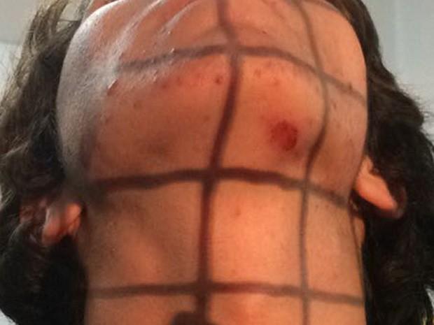 Estudante secundarista diz ter sido agredido com um chute por um policial (Foto: Livia Machado/G1)