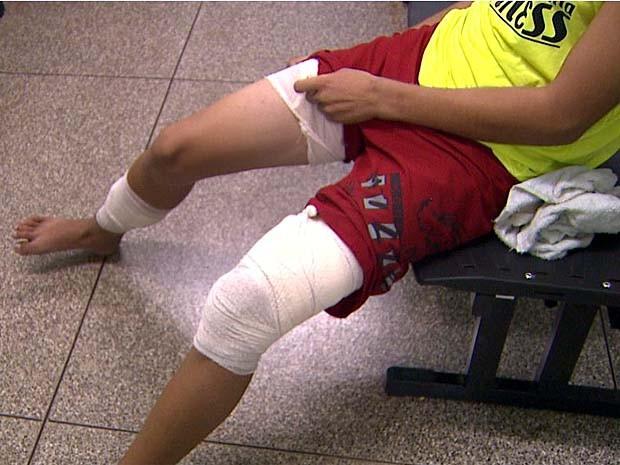 Estudante diz que pit bull só soltou suas pernas quando dono o puxou (Foto: Valdinei Malaguti/EPTV)
