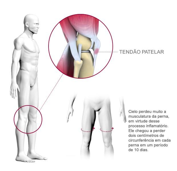 info joelho cielo (Foto: arte esporte)