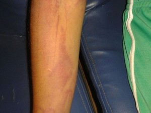 Menino estava com marcas de agressão pelo corpo (Foto: Divulgação/Conselho Tutelar)