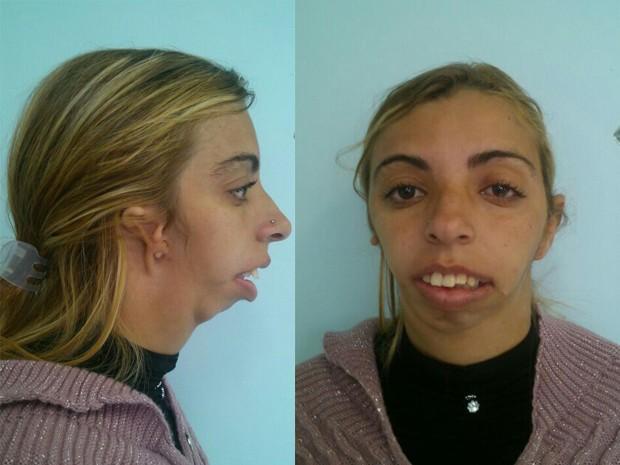 Luciene Anselmo de Faria tem problemas na mandíbula e na orelha (Foto: Marcelo Quintela/Arquivo Pessoal)