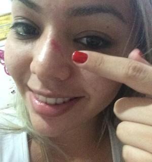 Atleta do taekwondo Lohanne Tavares posta foto de nariz quebrado durante treino. 'Foi normal' (Foto: Lohanne Tavares/Arquivo Pessoal)