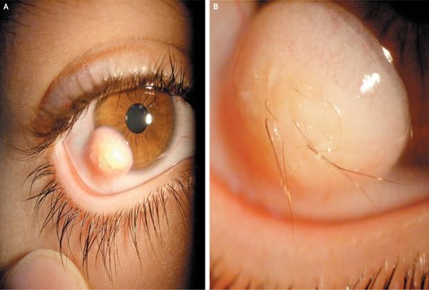 df53f24cbf8d4 Tumor com pelos identificado no olho de paciente (Foto  Reprodução