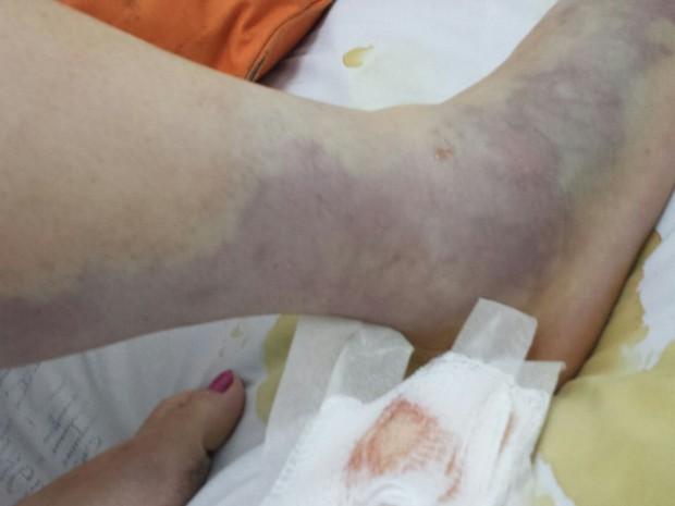 Mulher teve infecção na perna após pisar em saco de lixo com bagre morto (Foto: G1)