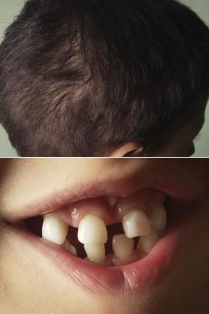 Sintomas da displasia incluem cabelos mais ralos, dentes pontiagudos e pele muito seca (Foto: Caio Kenji/G1)