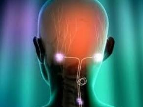 Globo Ciência: dor de cabeça- neuroestimulado occipital (Foto: Divulgação)